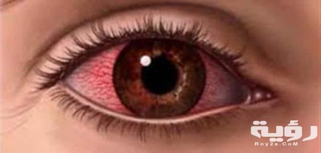 تفسير رؤية العين